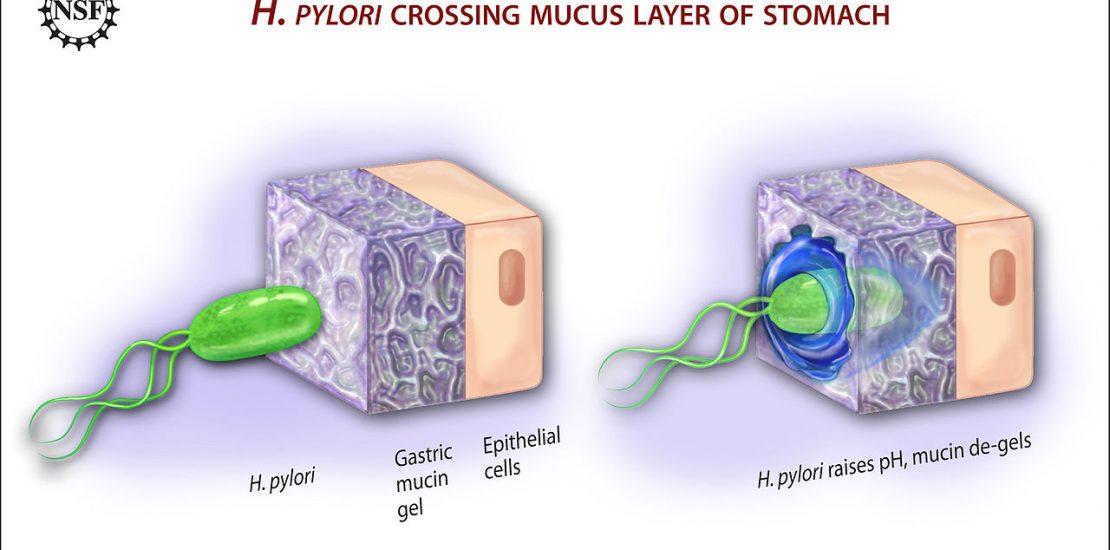 Helicobacter Pylori ulcerando estómago