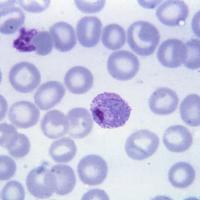 Células Sanguíneas infectadas