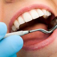 Revisión carillas dentales