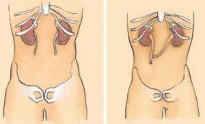 ureter_ureterostomia_percutanea
