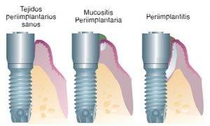 enfermedades-mucositis-periimplantitis