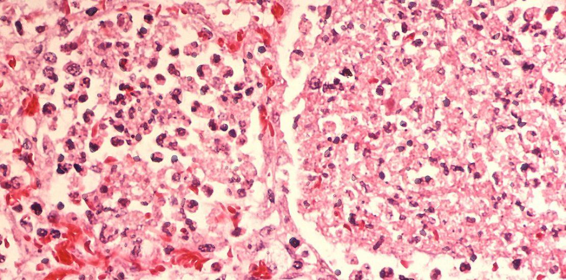 legionella-pneumonia