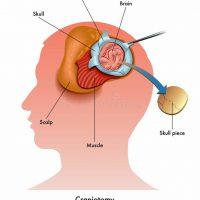 craneotomia-esquema