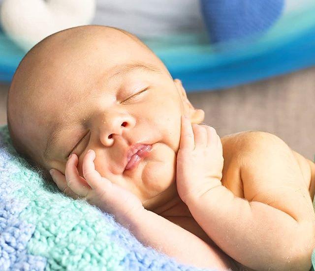 Tipos de fontanela en los bebés