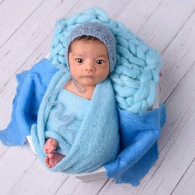 caracteristicas de la fontanela del bebé