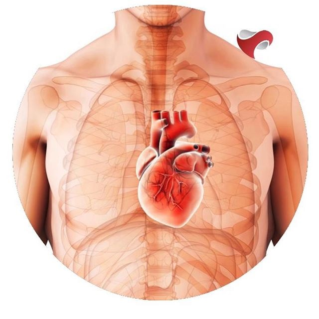 tipos de infarto