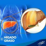Higado graso: Síntomas y complicaciones