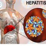 Síntomas de tener hepatitis y cómo prevenirla