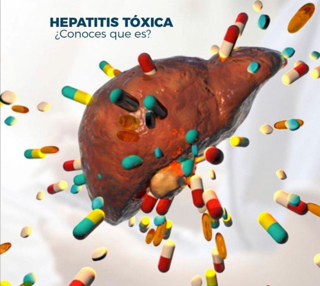 síntomas hepatitis
