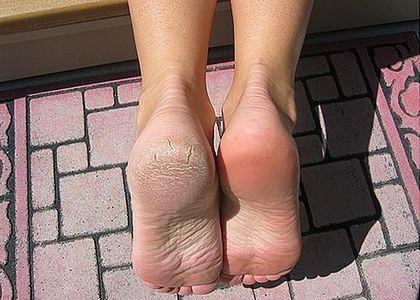 durezas en los pies