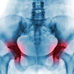 Tipos de fracturas de pelvis y cómo tratarla