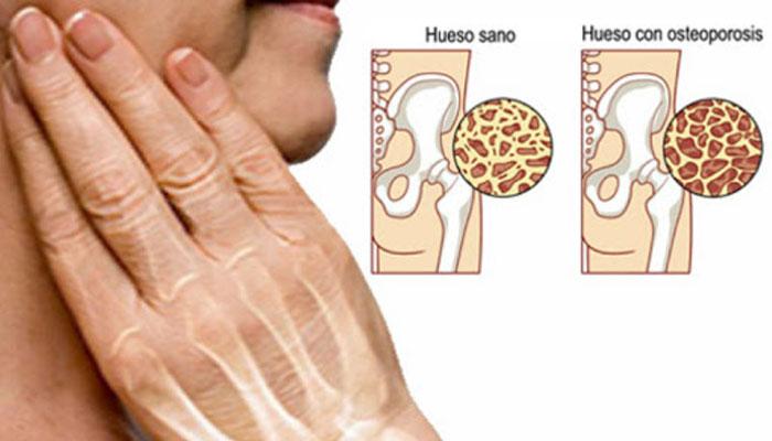 Osteoporosis: ¿Cómo vivir con ella?