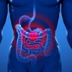 ¿Qué es la peritonitis? riesgos que implica